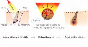 image du principe epilation laser